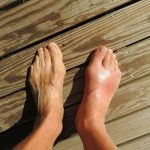 Are Your Poor Swollen Feet Caused by Lymphedema?